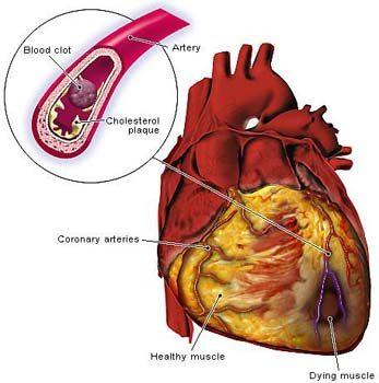 heart#2